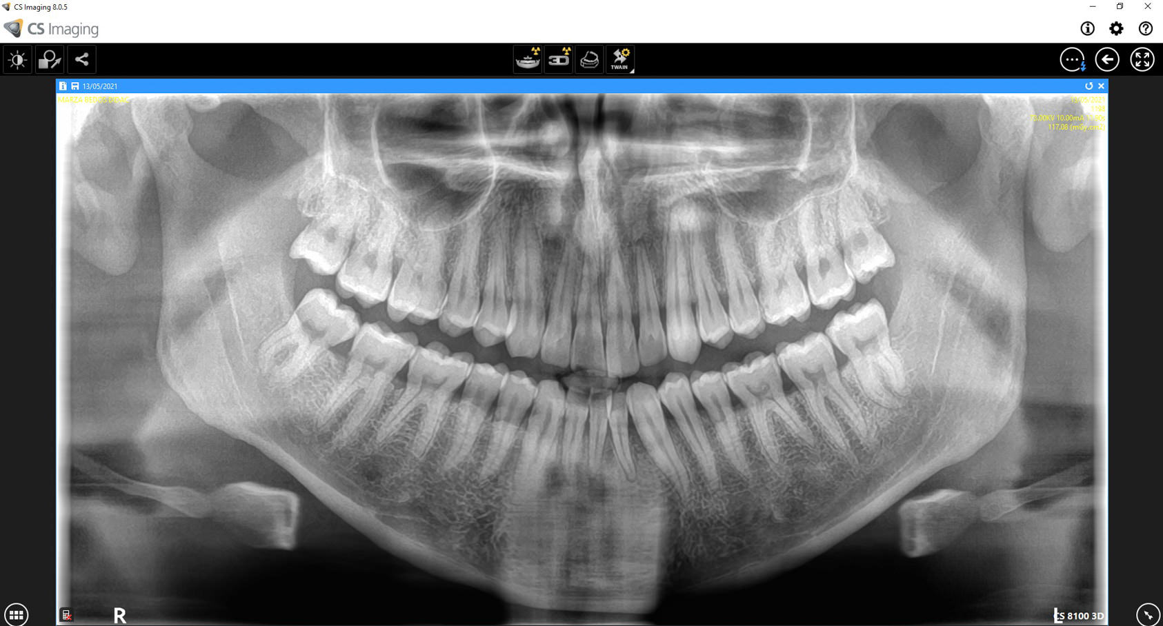 radiografia ortopanto dental