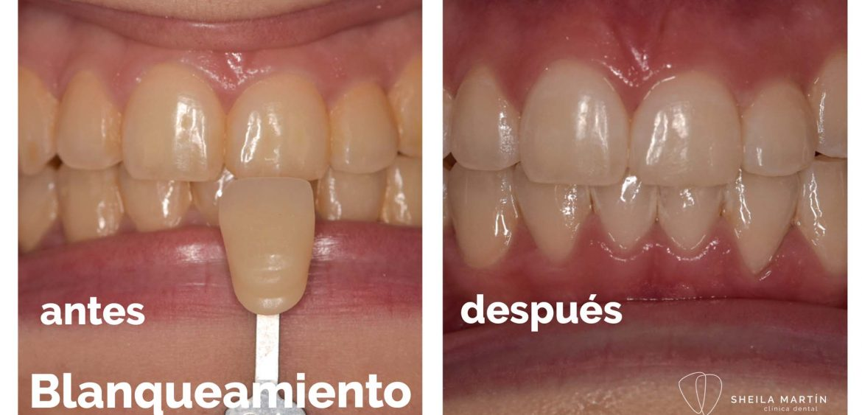 blanqueamiento-dental-tortosa